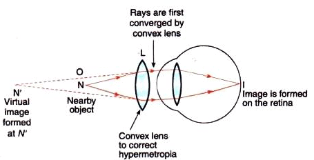 Solutions of The Human Eyes And The Colorful Wor (Page No- 280) - Physics By Lakhmir Singh, Class 10 Class 10 Notes | EduRev