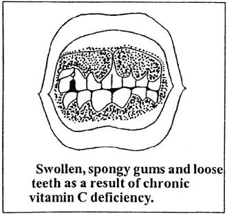 Types of Diseases Class 9 Notes | EduRev