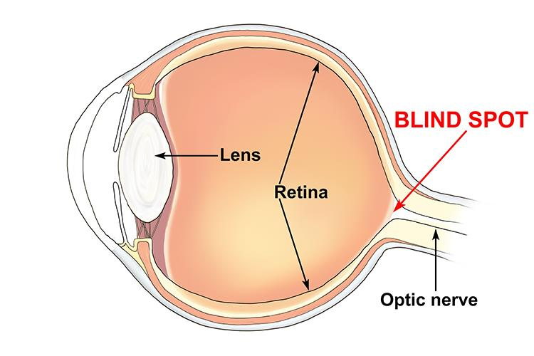what causes a blind spot in your eye